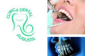 Limpieza dental con ultrasonidos, en Mérida, Don Benito o La Zarza